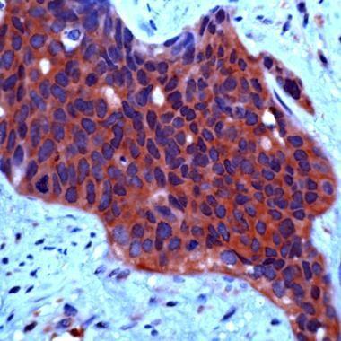 c-Met Antibody (PA1-29042) in Immunohistochemistry