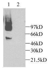 CX3CL1 Antibody (PA1-29224) in Western Blot