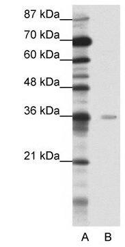 MBD2 Antibody (PA1-29386) in Western Blot