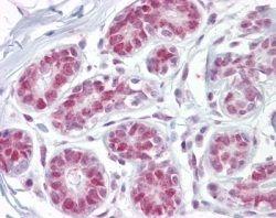APE1 Antibody (PA1-29465)