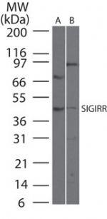 SIGIRR Antibody (PA1-29825)