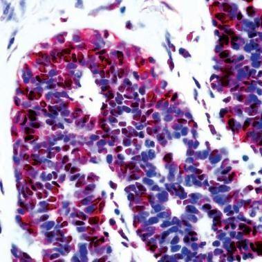 p14ARF Antibody (PA1-29914) in Immunohistochemistry