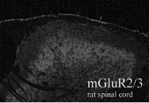 mGluR2/mGluR3 Antibody (PA1-30151) in Immunohistochemistry