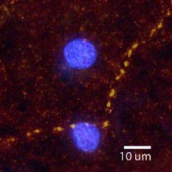 alpha-2a Adrenergic Receptor Antibody (PA1-30159)
