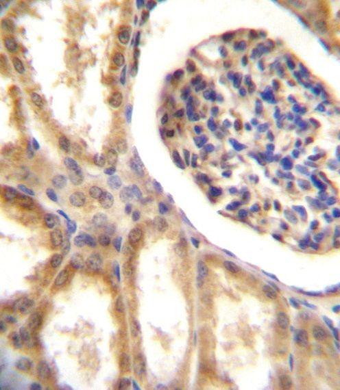 MCK10 Antibody (PA1-30315) in Immunohistochemistry (Paraffin)
