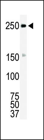 ROS Antibody (PA1-30318) in Western Blot