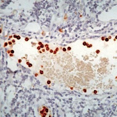 Myeloperoxidase Antibody (PA1-30516) in Immunohistochemistry