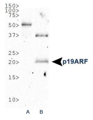 p19ARF Antibody (PA1-30670) in Western Blot