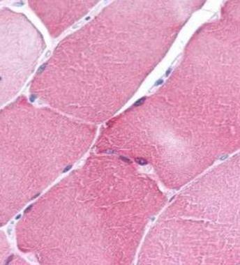 ARC Antibody (PA1-30681) in Immunohistochemistry