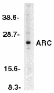 ARC Antibody (PA1-30682)
