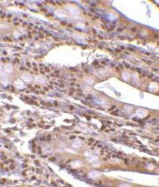 ANP32E Antibody (PA1-30729)