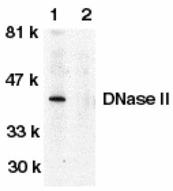 DNase II Antibody (PA1-30778) in Western Blot