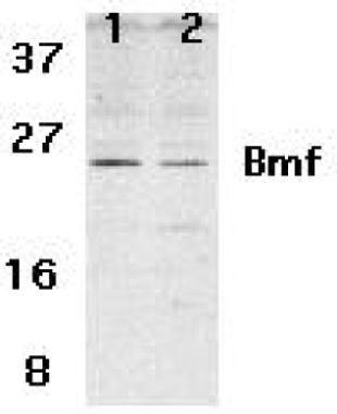 Bmf Antibody (PA1-30834) in Western Blot