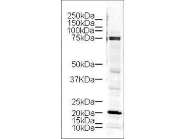 LIMK1 Antibody (PA1-31026)