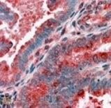 ACTR1B Antibody (PA1-31099)