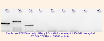 PDE4D Antibody (PA1-31136) in Western Blot