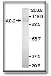 Adenylate Cyclase 2 Antibody (PA1-31190) in Western Blot