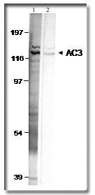 Adenylate Cyclase 3 Antibody (PA1-31191) in Western Blot