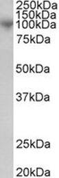 ADAM8 Antibody (PA1-31538)