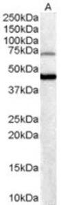 FOXG1 Antibody (PA1-31654) in Western Blot