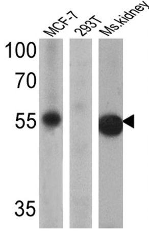ESRRG Antibody (PA1-316) in Western Blot