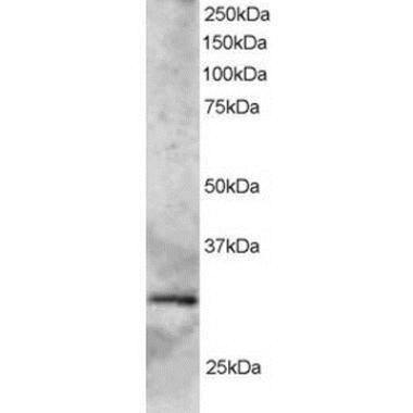 SYF2 Antibody (PA1-31763) in Western Blot