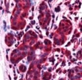 ALS2CR1 Antibody (PA1-31835) in Immunohistochemistry (Paraffin)