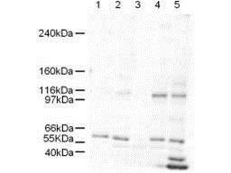 SMARCAL1 Antibody (PA1-31918) in Western Blot