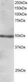 FOXL2 Antibody (PA1-31950) in Western Blot