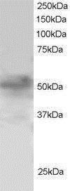FOXQ1 Antibody (PA1-31951) in Western Blot