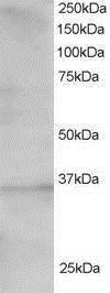 TCF19 Antibody (PA1-31982)