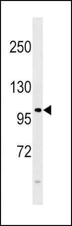FGFR4 Antibody (PA1-31991) in Western Blot
