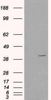 VPS26A Antibody (PA1-32102) in Western Blot