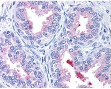 ABCA1 Antibody (PA1-32129) in Immunohistochemistry