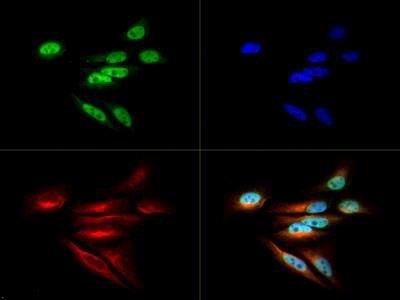 DNMT1 Antibody (PA1-32315) in Immunofluorescence