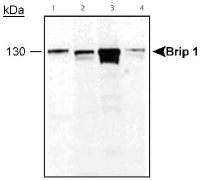 BRIP1 Antibody (PA1-32422) in Western Blot