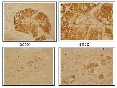 DLX4 Antibody (PA1-32425) in Immunohistochemistry