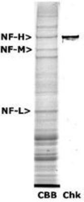 NEFH Antibody (PA1-32434) in Western Blot