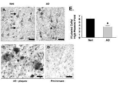 CYP46A1 Antibody (PA1-32446) in Immunohistochemistry