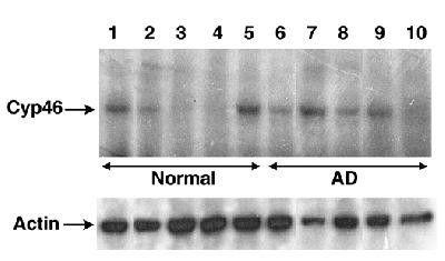 CYP46A1 Antibody (PA1-32446) in Western Blot