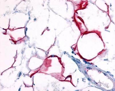 GPR109B Antibody (PA1-32525) in Immunohistochemistry