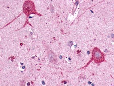 Opsin 3 Antibody (PA1-32531) in Immunohistochemistry