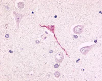 GPR17 Antibody (PA1-32553)