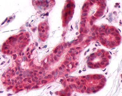 DUSP26 Antibody (PA1-32629)