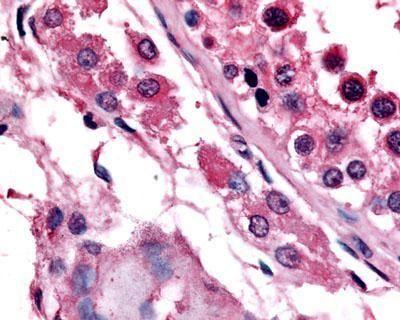 ESRRB Antibody (PA1-32639)