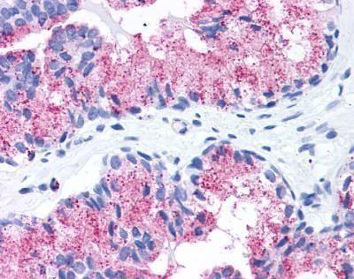 FZD1 Antibody (PA1-32766)