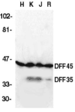ICAD Antibody (PA1-33022) in Western Blot