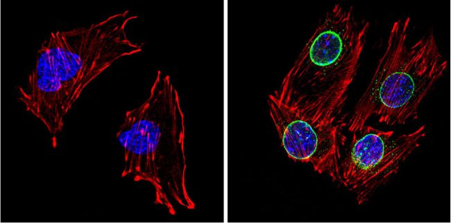 LXR beta Antibody (PA1-333) in Immunofluorescence