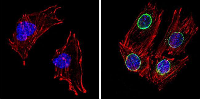 LXR beta Antibody (PA1-333)