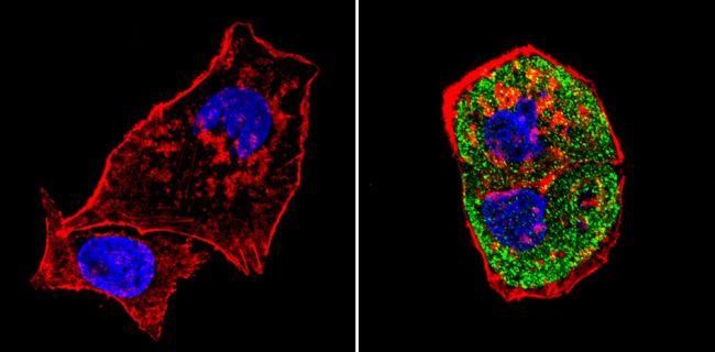 SREBP1 Antibody (PA1-337) in Immunofluorescence